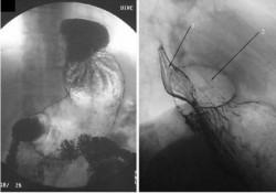 Рентгенограмма больного с грыжей пищеводного отверстия диафрагмы. 1- пищевод 2- дно желудка проникшее в грудную клетку через расширенное пищеводное отверстие диафрагмы (параэзофагеальная)