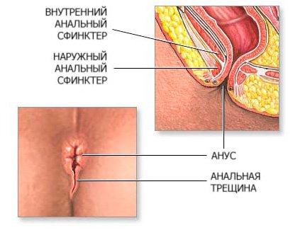 Подробное объяснение трещин заднего прохода (анальная трещина, трещина прям