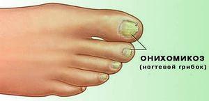 Как вылечить грибок кандида ногтях